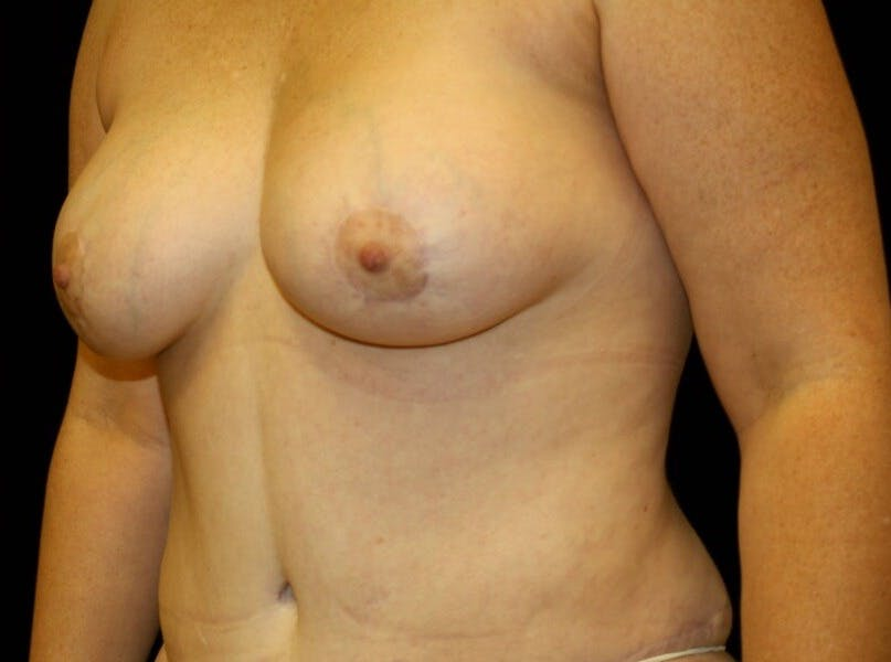 Breast Augmentation Gallery - Patient 39245615 - Image 5