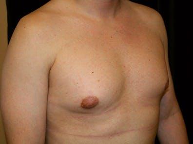 Gynecomastia Gallery - Patient 39245616 - Image 3