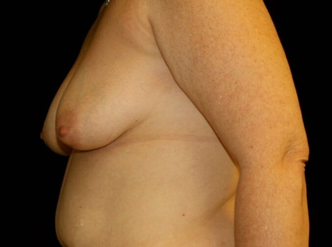 Breast Augmentation Gallery - Patient 39245615 - Image 6