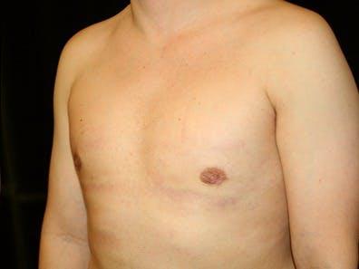 Gynecomastia Gallery - Patient 39245616 - Image 6