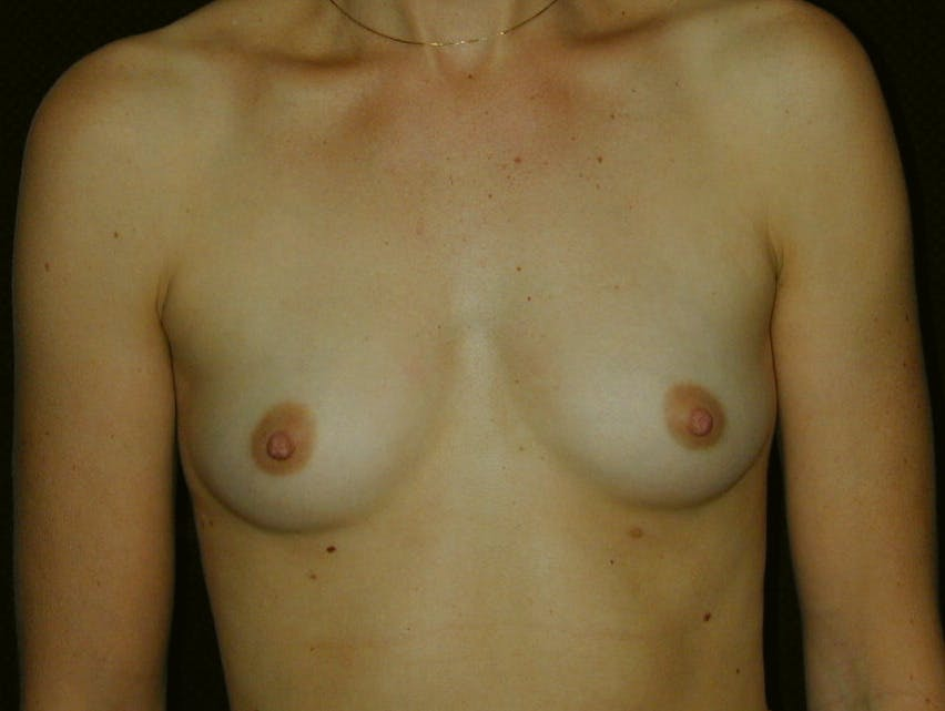 Breast Augmentation Gallery - Patient 39245620 - Image 1