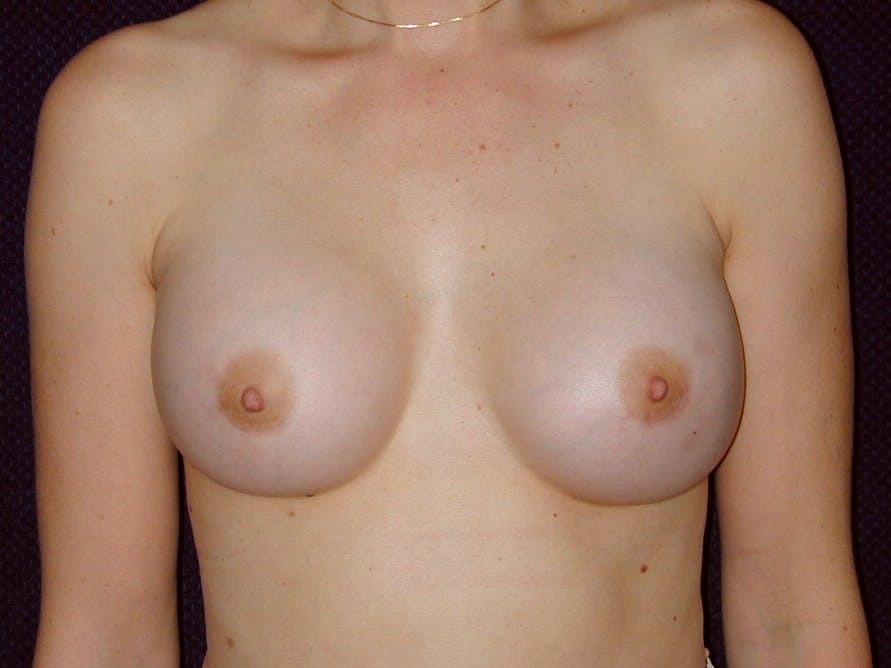 Breast Augmentation Gallery - Patient 39245620 - Image 2