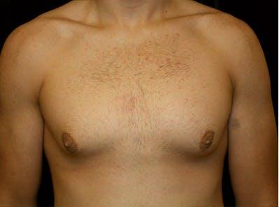 Gynecomastia Gallery - Patient 39245619 - Image 1