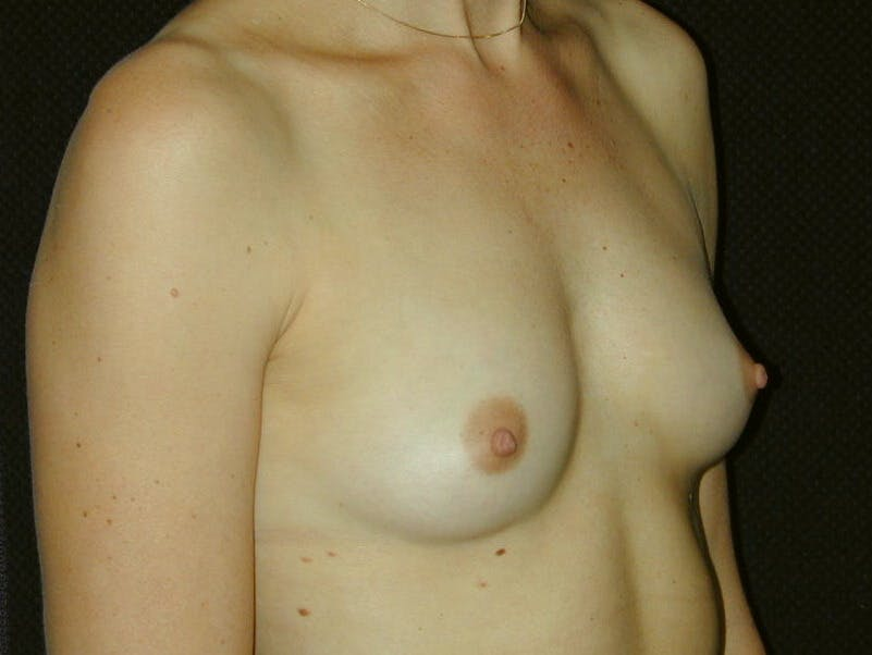Breast Augmentation Gallery - Patient 39245620 - Image 3