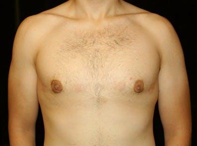 Gynecomastia Gallery - Patient 39245619 - Image 2