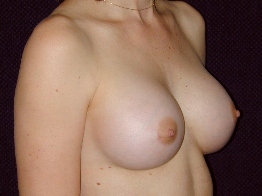 Breast Augmentation Gallery - Patient 39245620 - Image 4