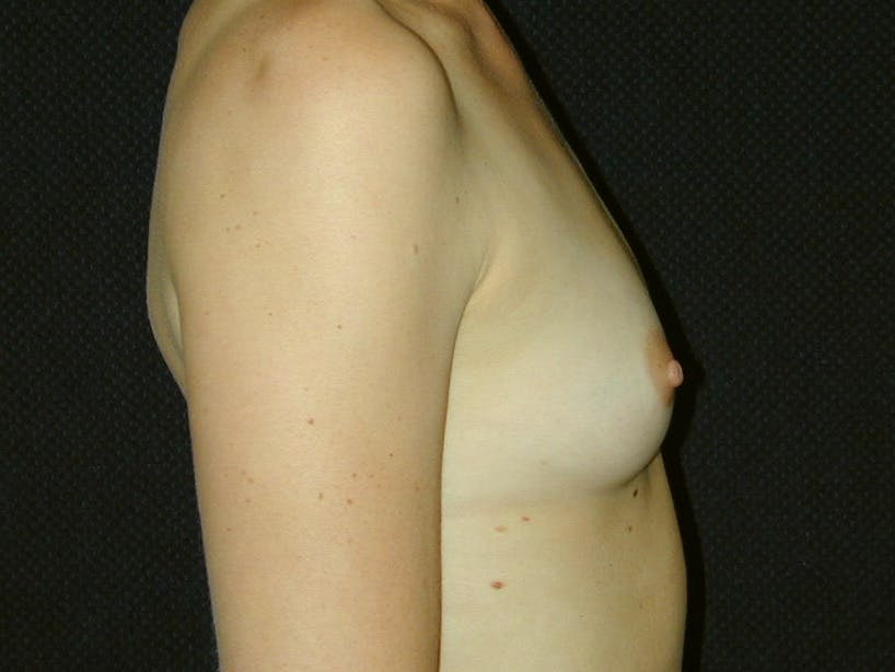 Breast Augmentation Gallery - Patient 39245620 - Image 5