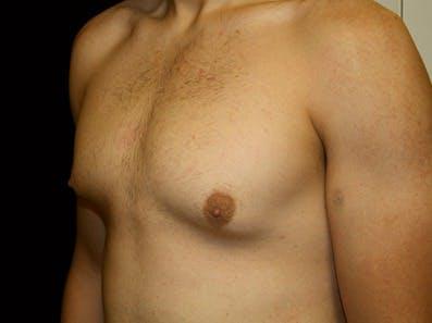 Gynecomastia Gallery - Patient 39245619 - Image 5