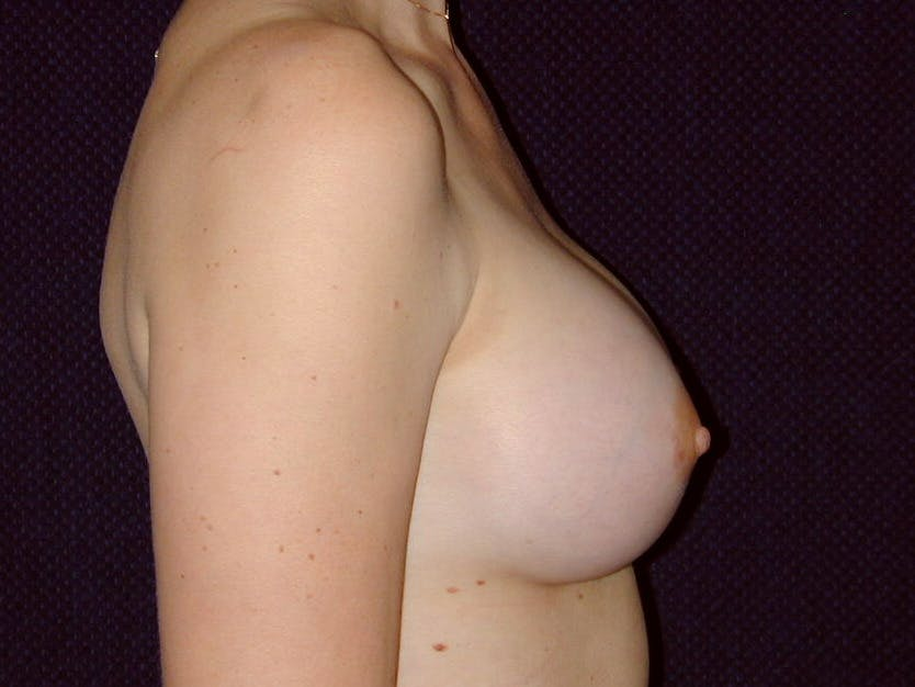 Breast Augmentation Gallery - Patient 39245620 - Image 6