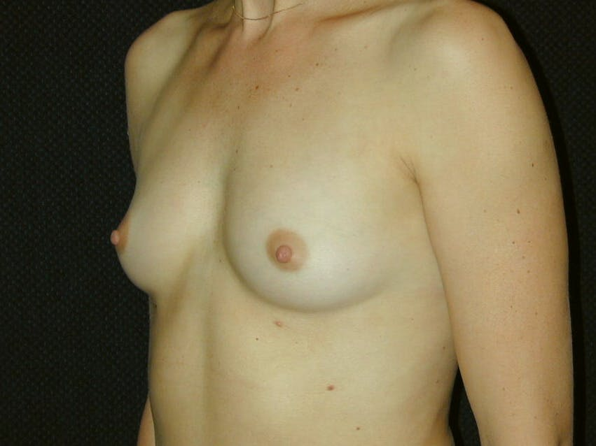 Breast Augmentation Gallery - Patient 39245620 - Image 7