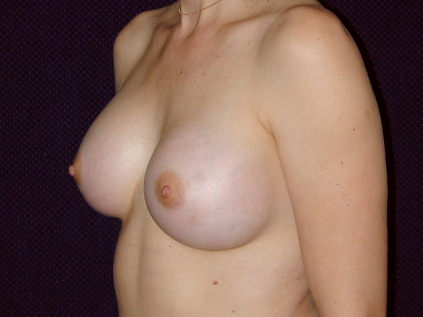 Breast Augmentation Gallery - Patient 39245620 - Image 8