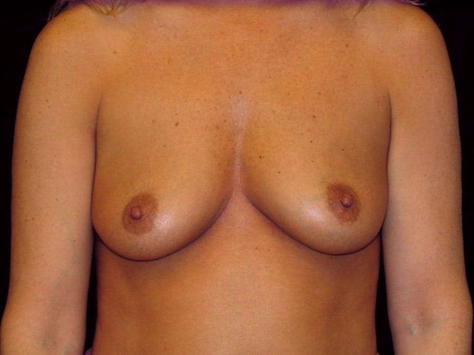 Breast Augmentation Gallery - Patient 39245623 - Image 1