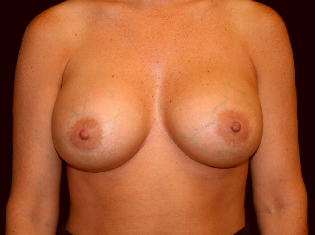 Breast Augmentation Gallery - Patient 39245623 - Image 2