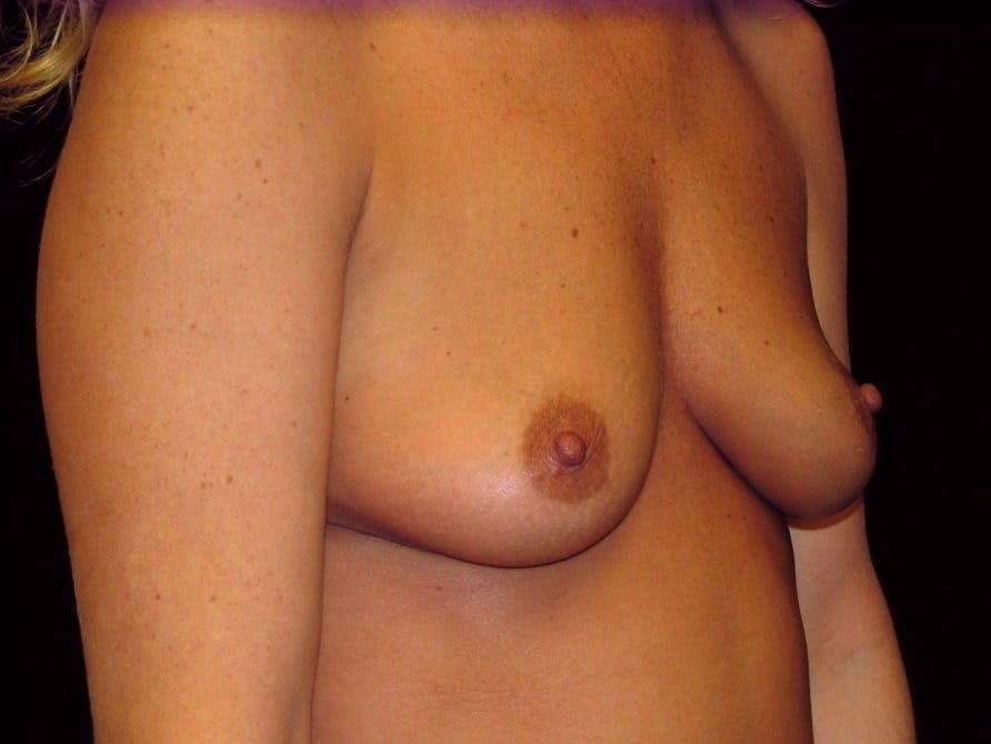 Breast Augmentation Gallery - Patient 39245623 - Image 3