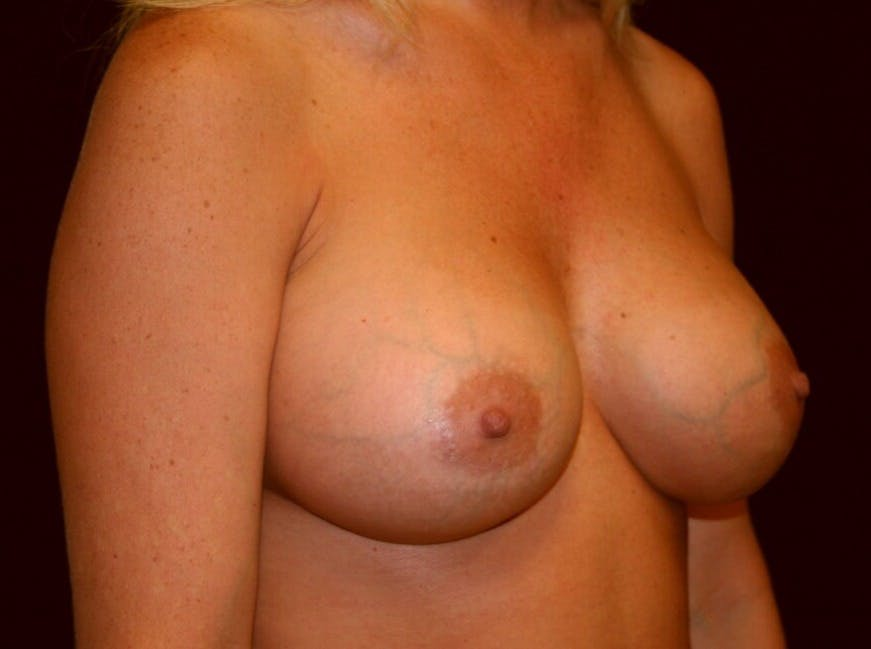 Breast Augmentation Gallery - Patient 39245623 - Image 4