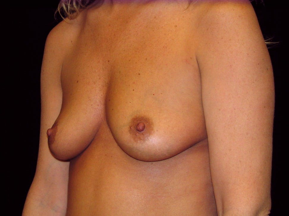 Breast Augmentation Gallery - Patient 39245623 - Image 5