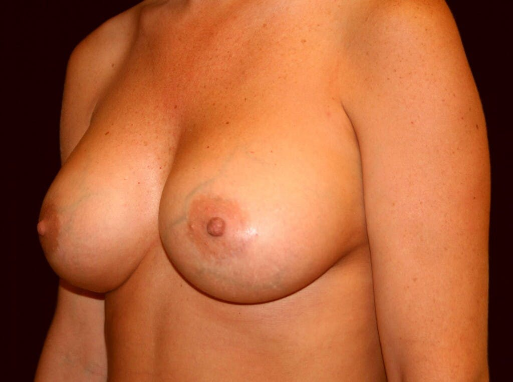 Breast Augmentation Gallery - Patient 39245623 - Image 6
