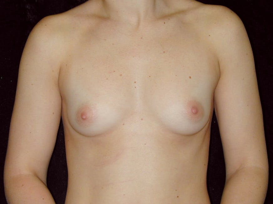 Breast Augmentation Gallery - Patient 39245628 - Image 1