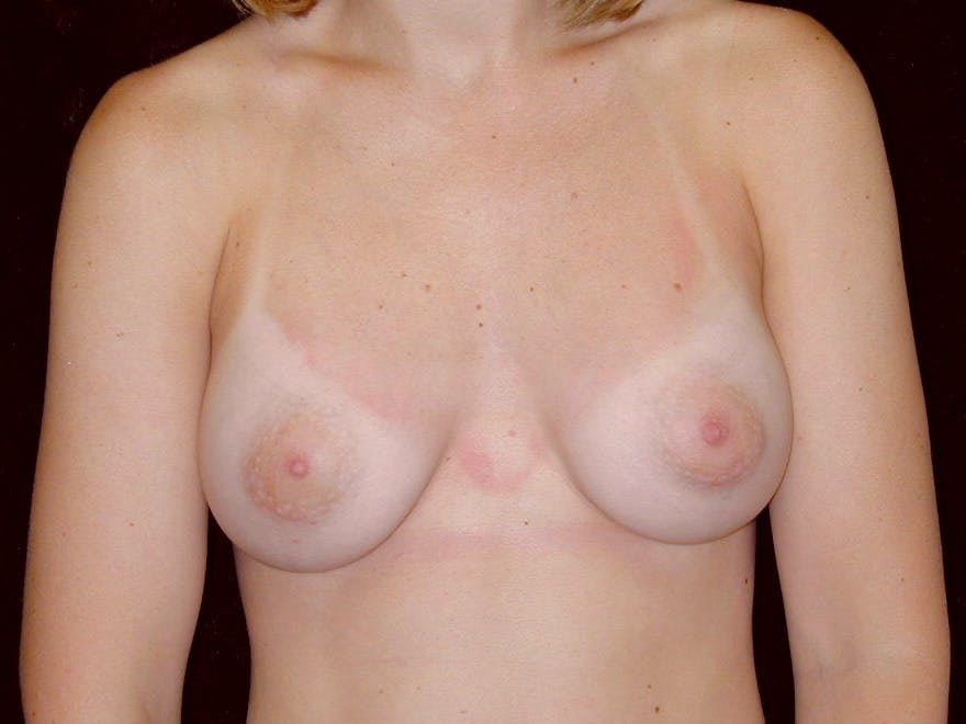 Breast Augmentation Gallery - Patient 39245628 - Image 2