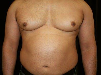 Gynecomastia Gallery - Patient 39245627 - Image 1