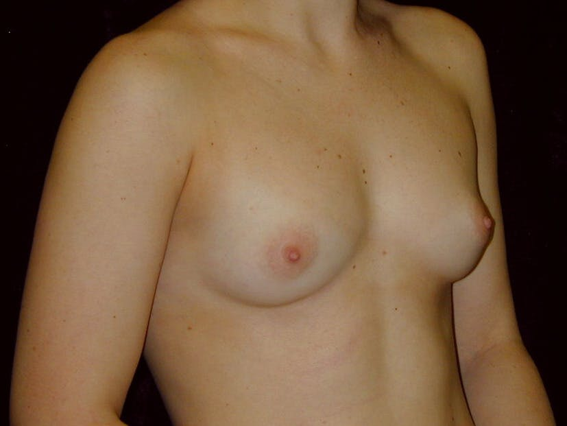 Breast Augmentation Gallery - Patient 39245628 - Image 3