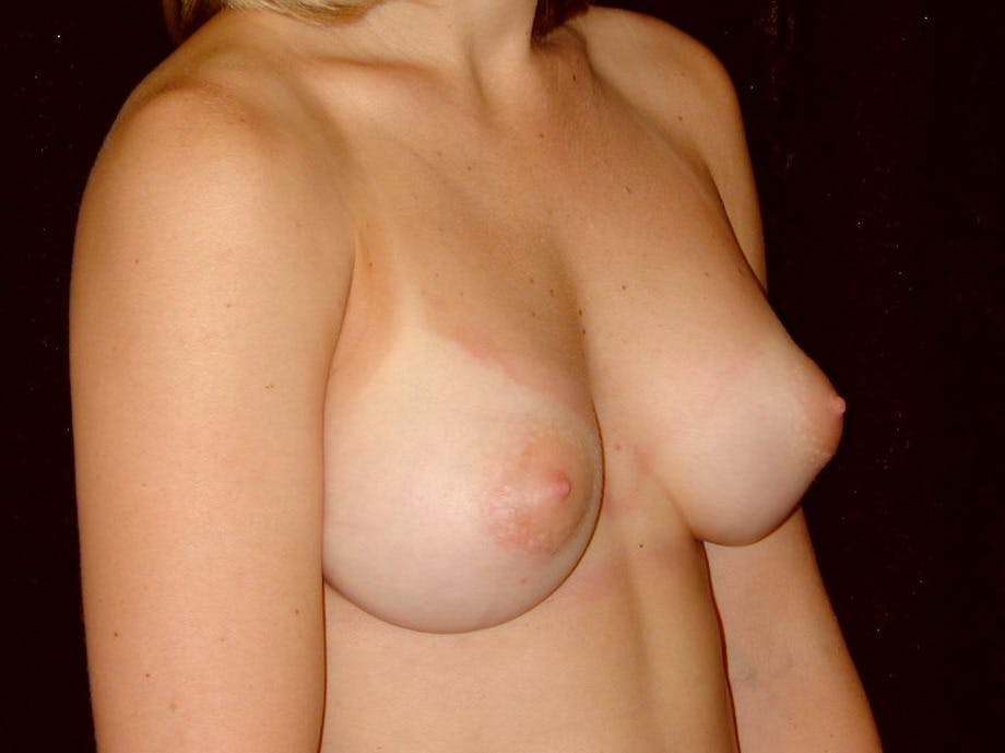 Breast Augmentation Gallery - Patient 39245628 - Image 4
