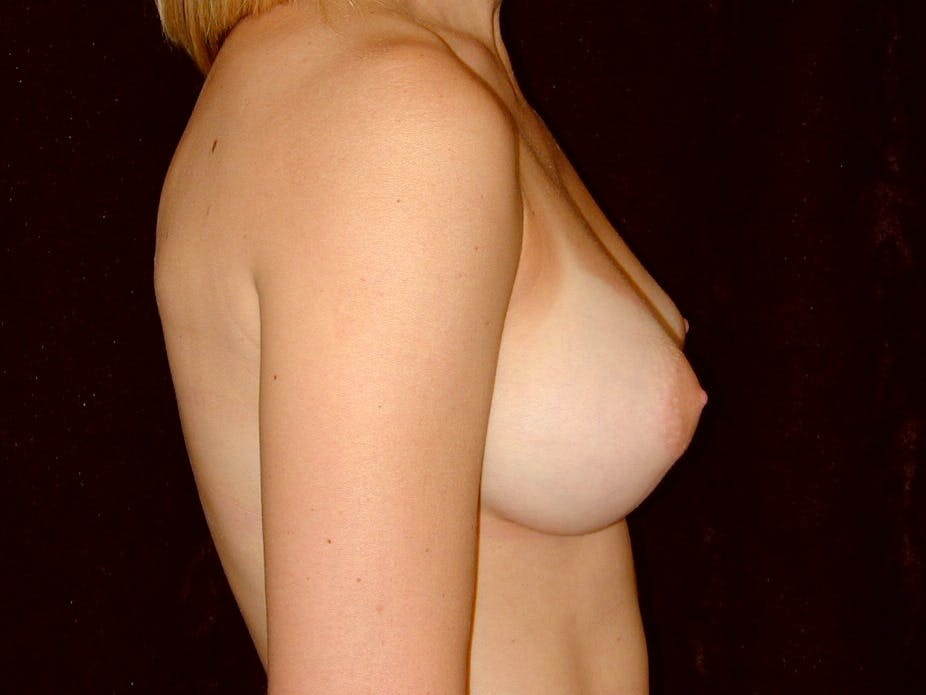 Breast Augmentation Gallery - Patient 39245628 - Image 6