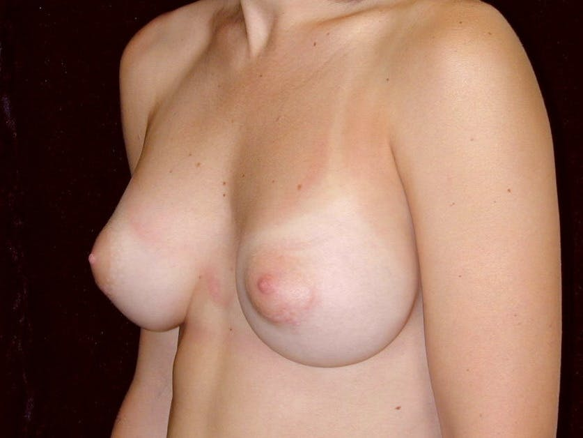 Breast Augmentation Gallery - Patient 39245628 - Image 8