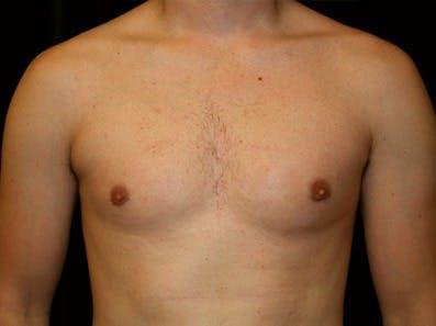Gynecomastia Gallery - Patient 39245629 - Image 2