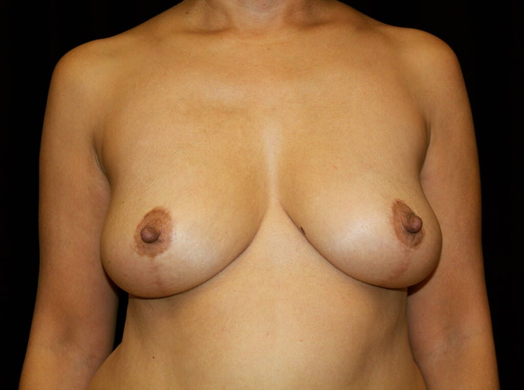 Breast Augmentation Gallery - Patient 39245631 - Image 1