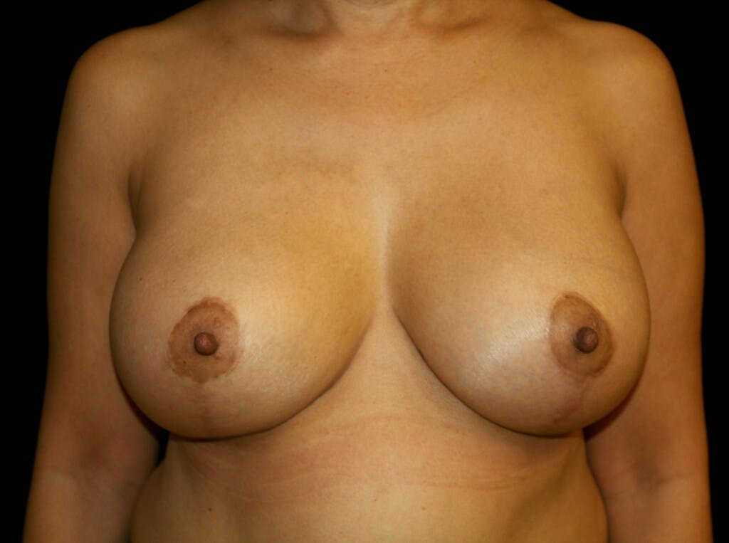 Breast Augmentation Gallery - Patient 39245631 - Image 2
