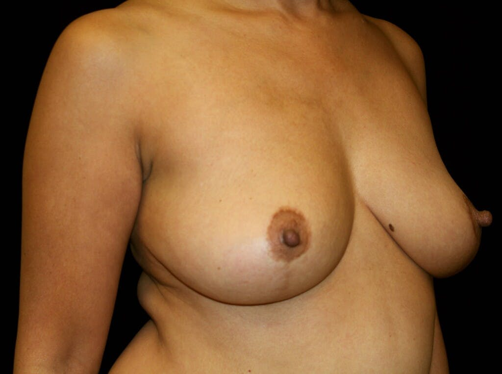 Breast Augmentation Gallery - Patient 39245631 - Image 3