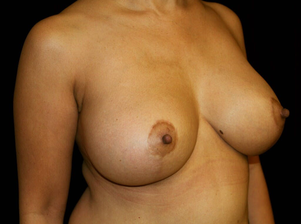 Breast Augmentation Gallery - Patient 39245631 - Image 4