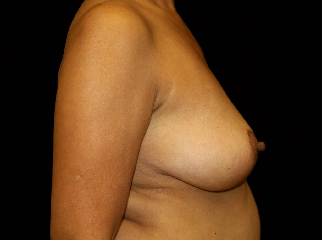 Breast Augmentation Gallery - Patient 39245631 - Image 5