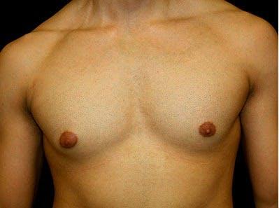 Gynecomastia Gallery - Patient 39245630 - Image 1
