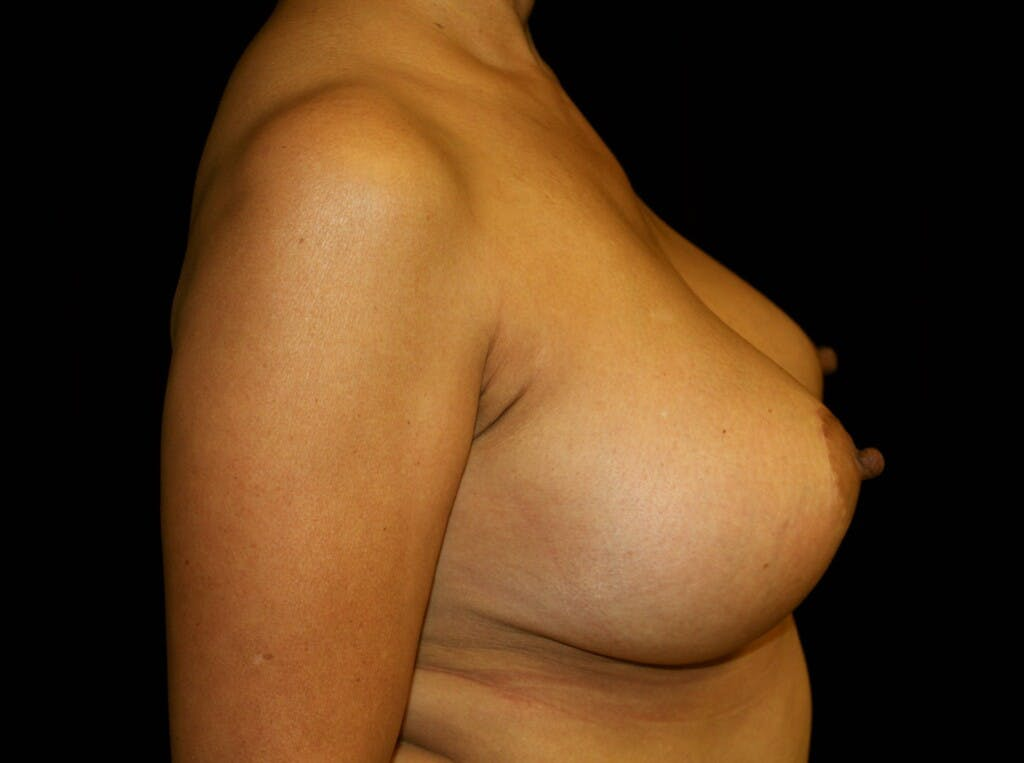 Breast Augmentation Gallery - Patient 39245631 - Image 6