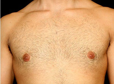 Gynecomastia Gallery - Patient 39245630 - Image 2