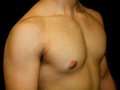 Gynecomastia Gallery - Patient 39245630 - Image 3