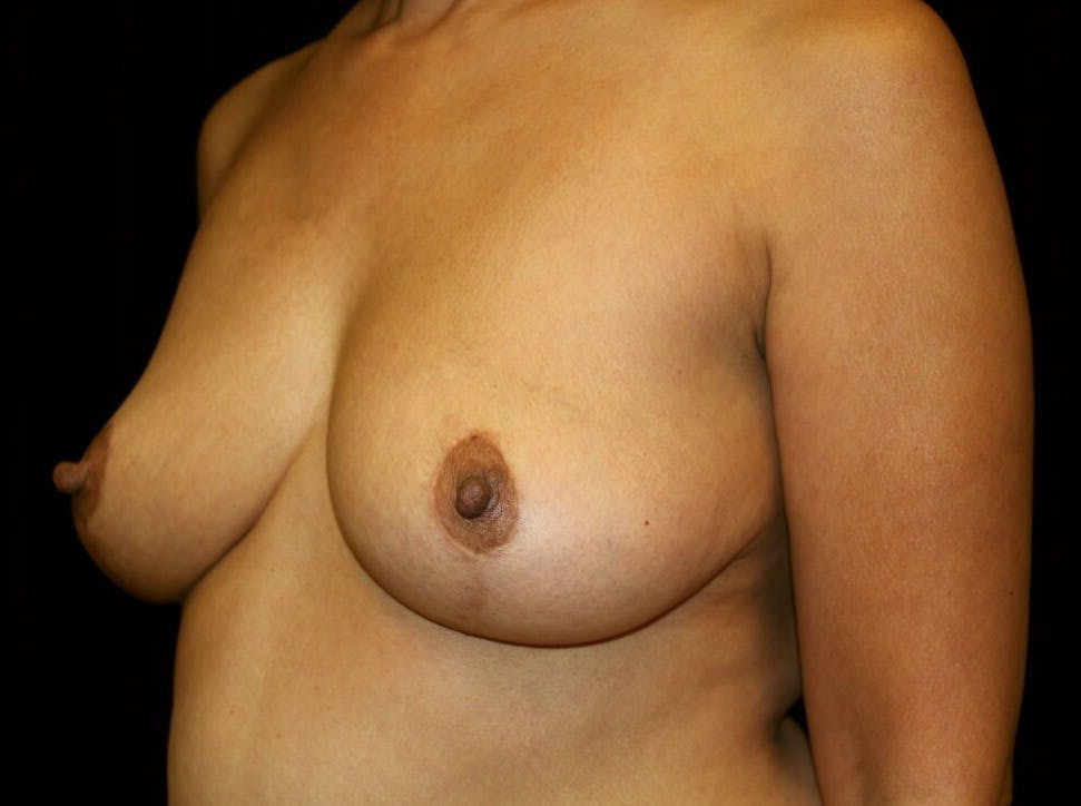 Breast Augmentation Gallery - Patient 39245631 - Image 7