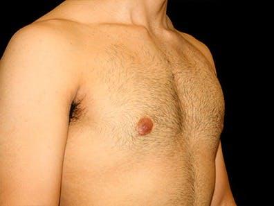 Gynecomastia Gallery - Patient 39245630 - Image 4