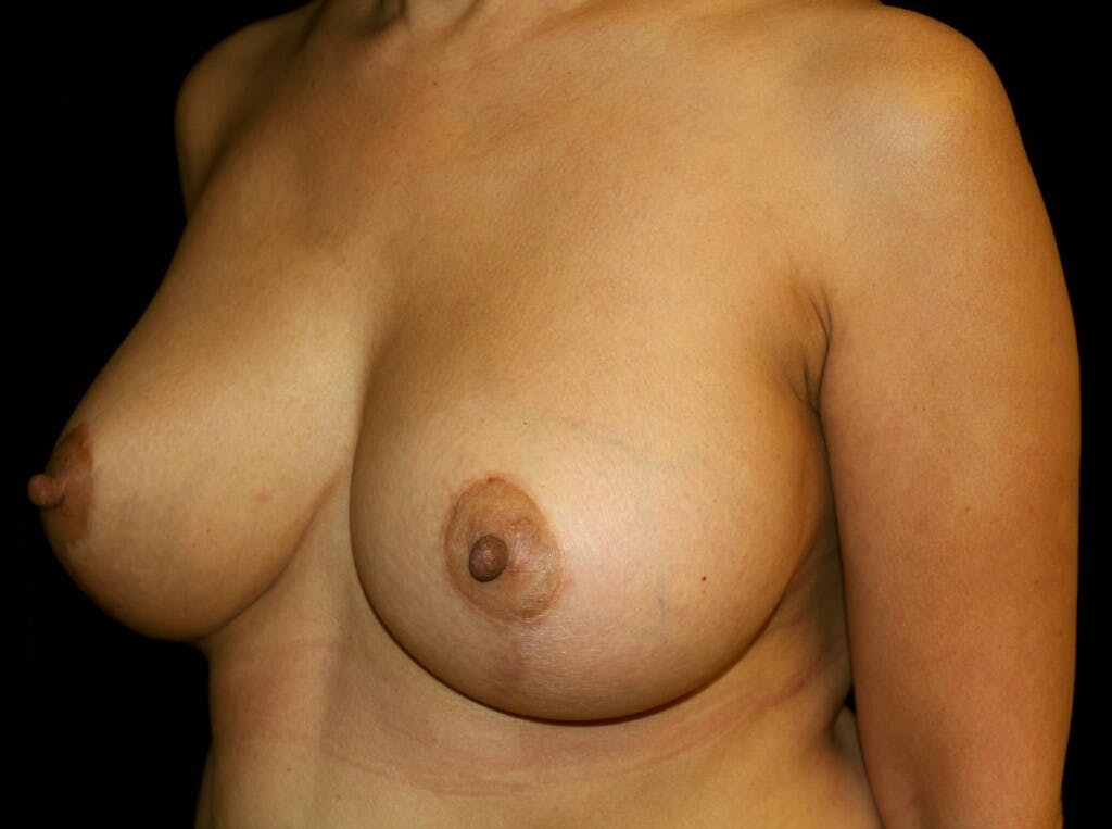 Breast Augmentation Gallery - Patient 39245631 - Image 8