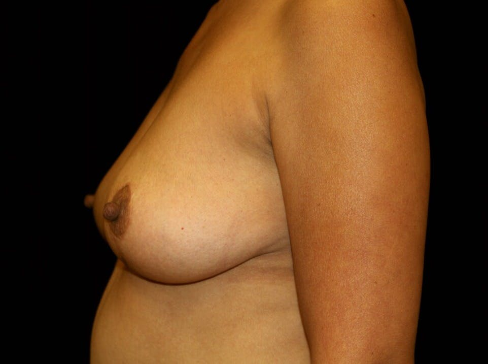 Breast Augmentation Gallery - Patient 39245631 - Image 9