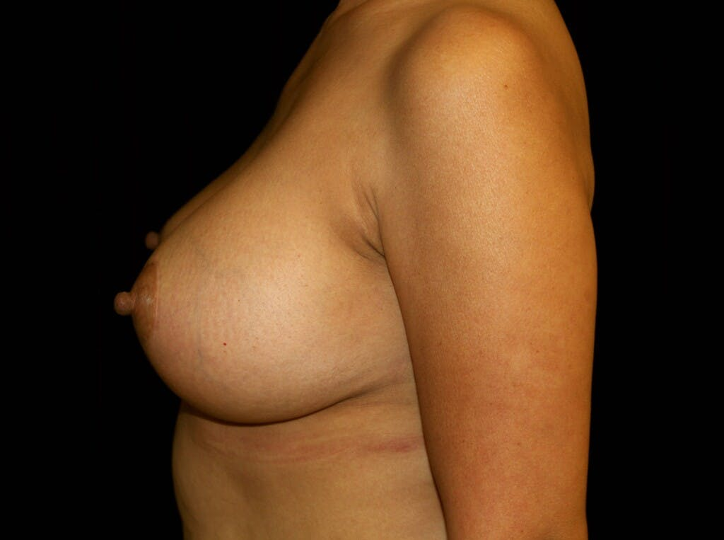 Breast Augmentation Gallery - Patient 39245631 - Image 10