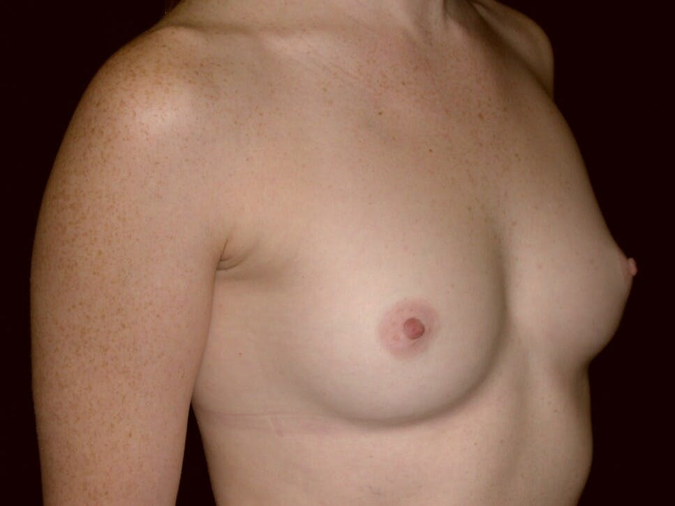 Breast Augmentation Gallery - Patient 39245635 - Image 1