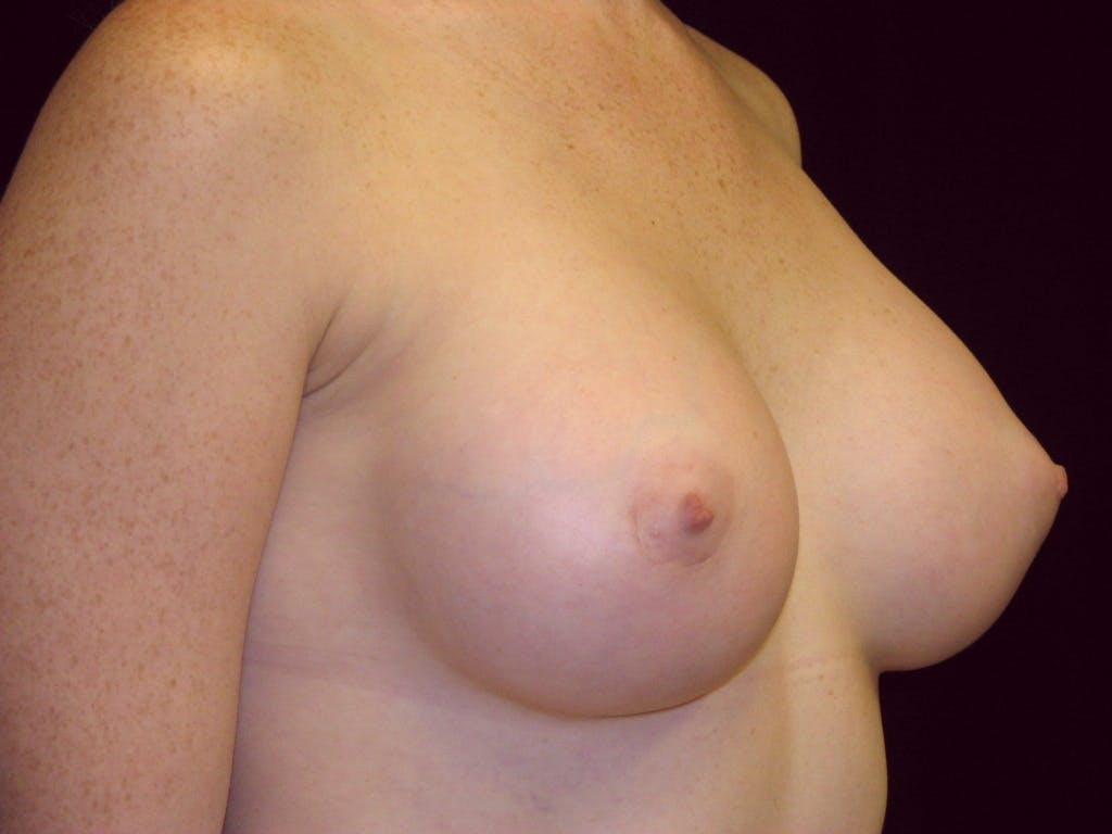 Breast Augmentation Gallery - Patient 39245635 - Image 2