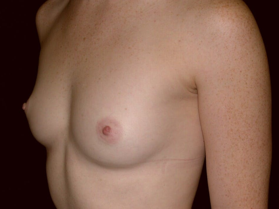 Breast Augmentation Gallery - Patient 39245635 - Image 3