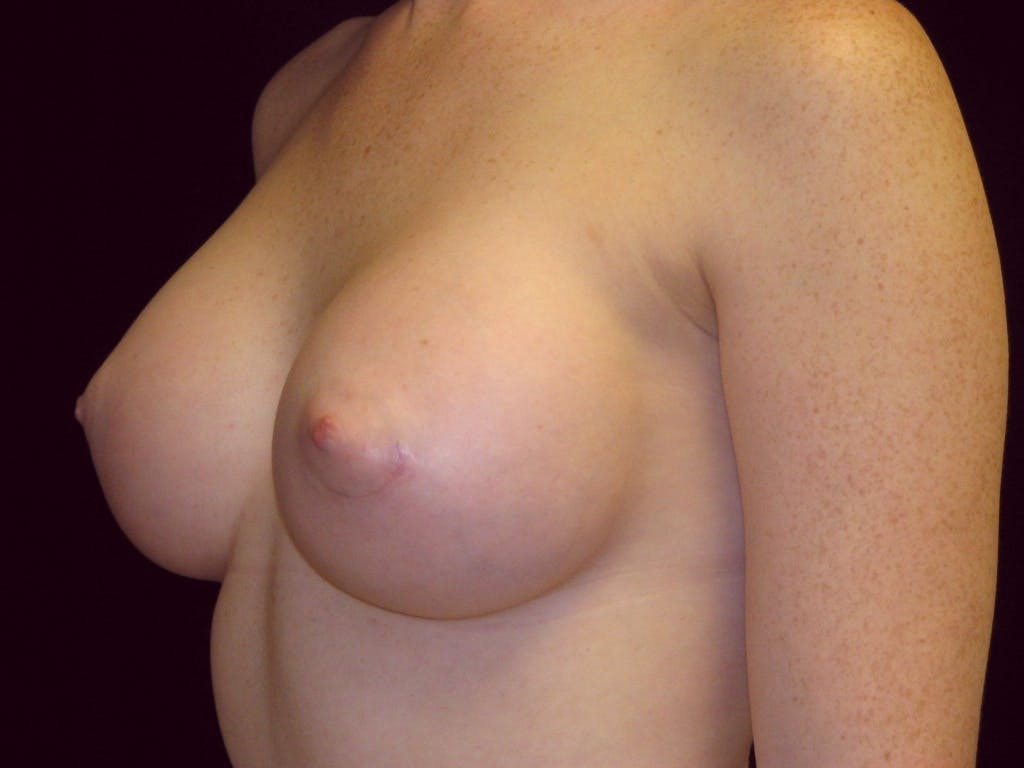 Breast Augmentation Gallery - Patient 39245635 - Image 4
