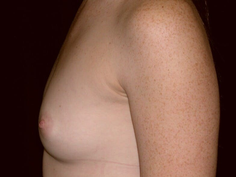 Breast Augmentation Gallery - Patient 39245635 - Image 5