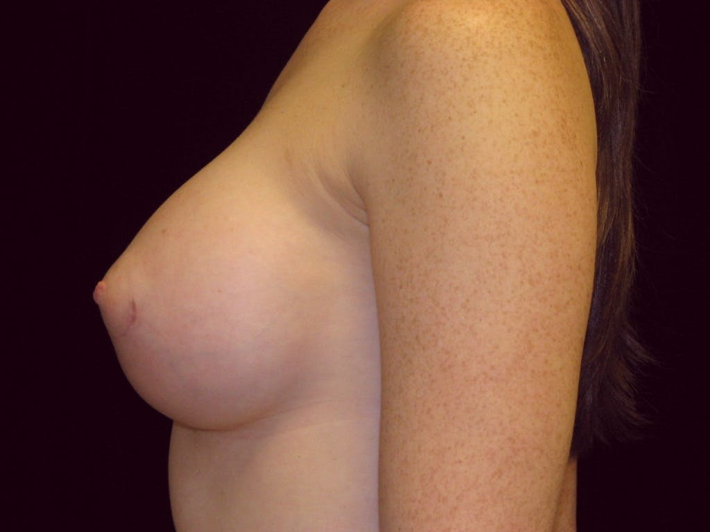 Breast Augmentation Gallery - Patient 39245635 - Image 6