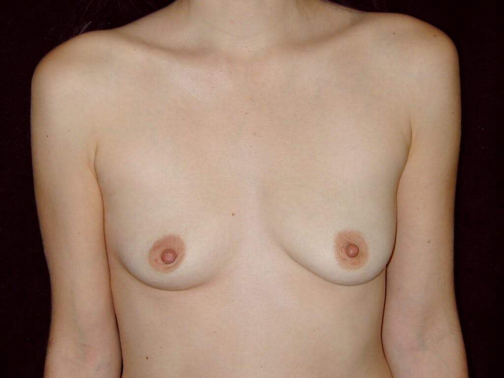 Breast Augmentation Gallery - Patient 39245647 - Image 1